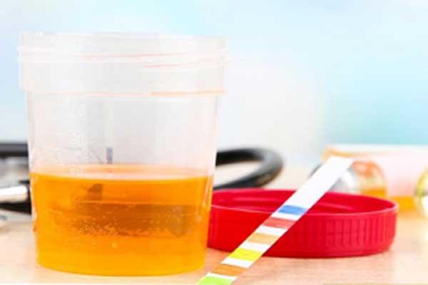 اسید اسکوربیک در ازمایش ادرار